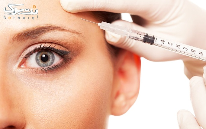 تزریق بوتاکس دیسپورت در مطب دکتر عرفانی